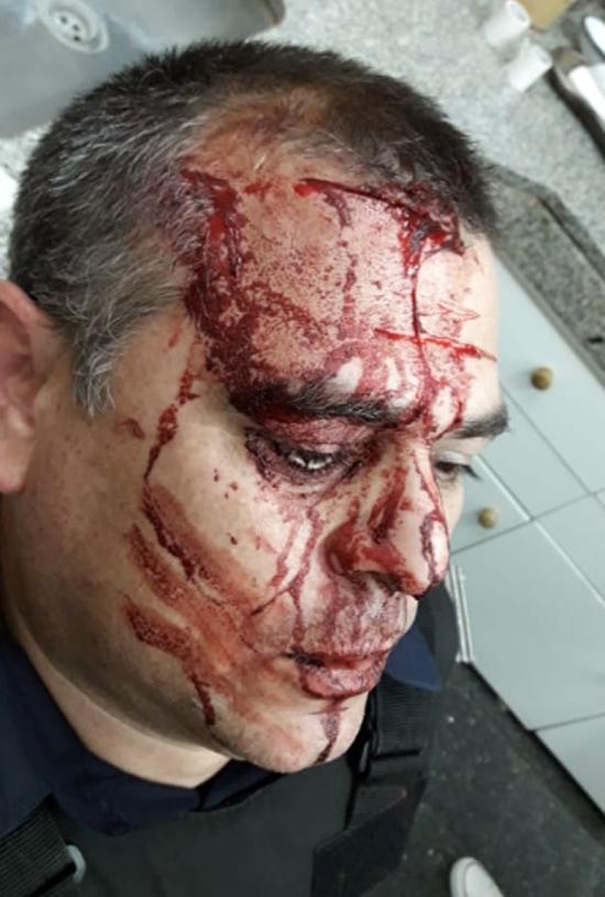 policia herido 2